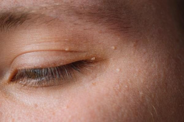 skin tags forming around eye